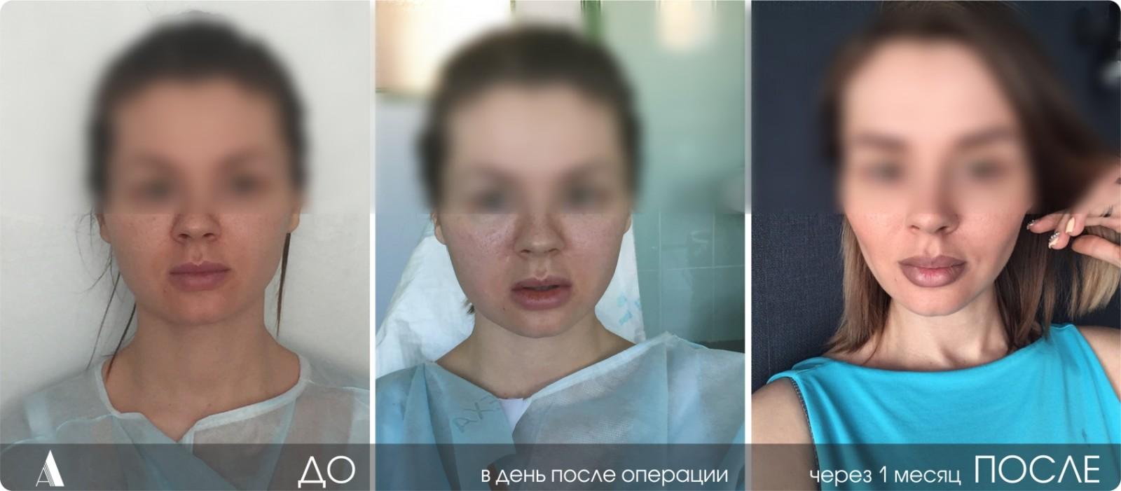 отзывы удаление комков биша фото до и после
