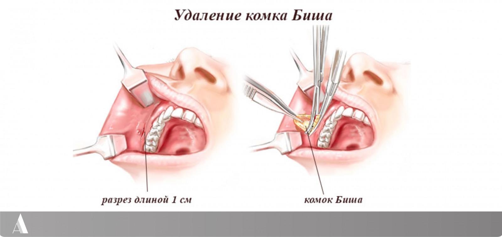 operatsiya-na-anuse